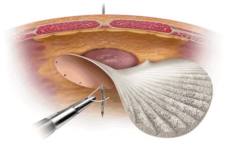 laparoscopic incisional hernia encino