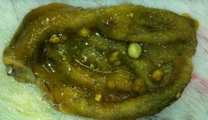 Gallbladder Polyps Are They Cancer And How They Are Treated